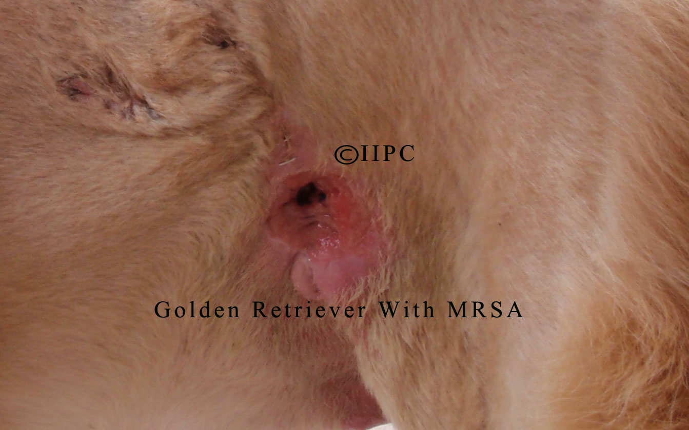 Mrsa Staph Infection Pictures, Images & Photos | Photobucket