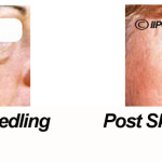 Cosmetic vs Medical Skin Needling